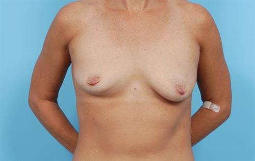 Breast Lift Before Photo | Miami, FL | Baker Plastic Surgery