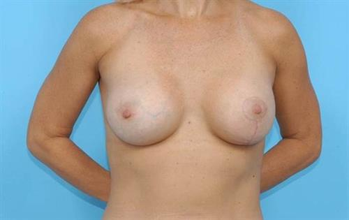Breast Lift After Photo | Miami, FL | Baker Plastic Surgery