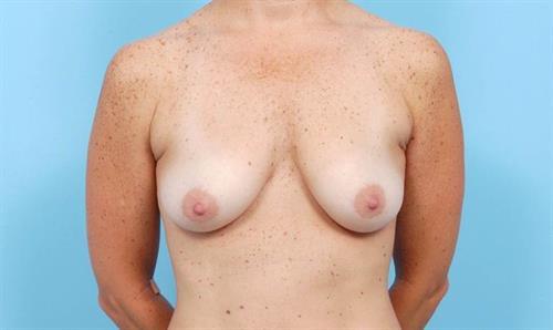 Breast Lift Before Photo | Miami, FL | Baker Plastic Surgery