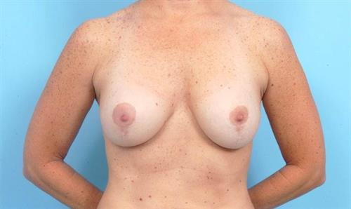 Breast Lift After Photo | Miami, FL | Baker Plastic Surgery