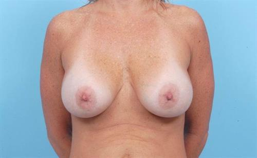 Breast Revision Before Photo | Miami, FL | Baker Plastic Surgery