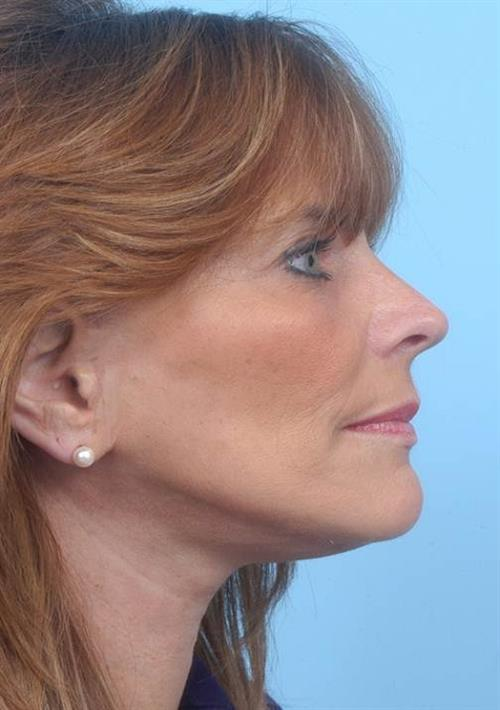 Facelift & Neck Lift After Photo | Miami, FL | Baker Plastic Surgery