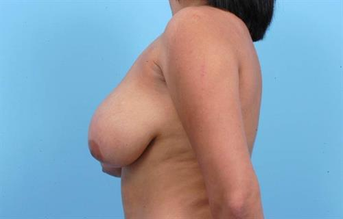 Breast Reduction Before Photo   Miami, FL   Baker Plastic Surgery