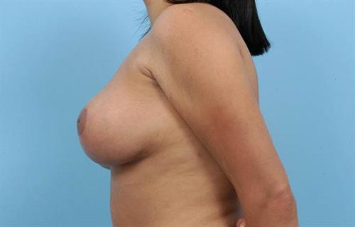 Breast Reduction After Photo   Miami, FL   Baker Plastic Surgery