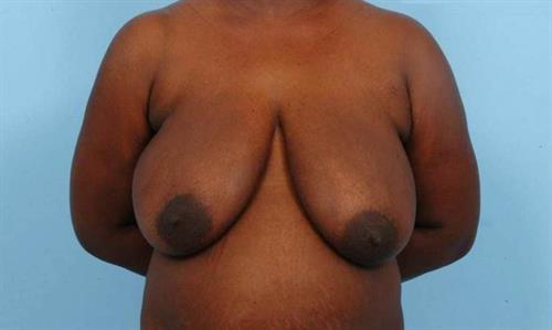 Breast Reduction Before Photo | Miami, FL | Baker Plastic Surgery