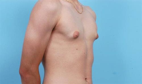 Gynecomastia Before Photo | Miami, FL | Baker Plastic Surgery